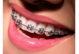 De ce apare tartrul dentar si cum scapam rapid de el?